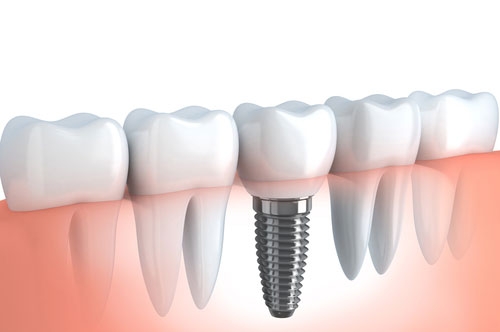 A Quick Look at the Tooth Implant Process (infographic)