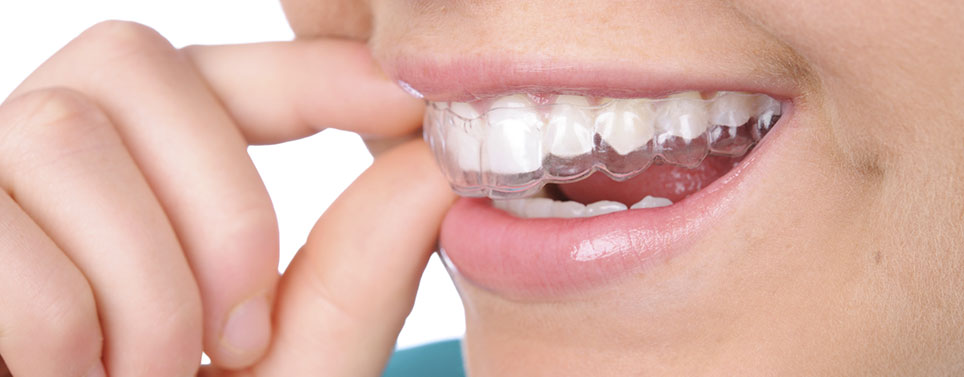 Invisalign Could Give You A Straight Smile [video]